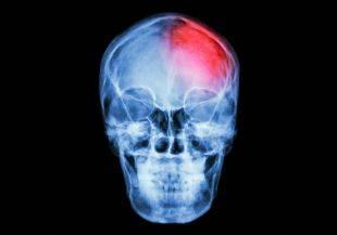 Алкоголь при сотрясении мозга
