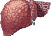 Симптомы и признаки цирроза печени у женщин
