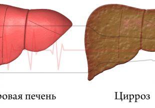 Классификация цирроза печени по Child-Pugh