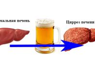 Как влияет пиво на печень человека