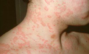 Появление аллергической реакции от препарата Антабус