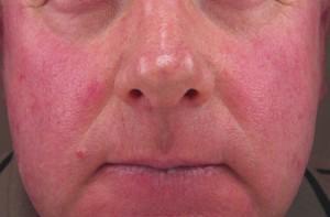 Покраснение лица у пьющих людей, не выходящих из запоя, обусловлено лопающимися или отмирающими капиллярами, просвечивающимися под кожей