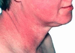 Основными признаками аллергии на на алкоголь является появление красных пятен на шее и лице