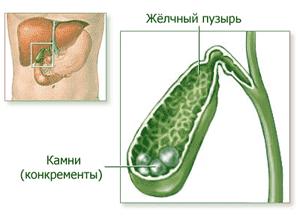 Препарат используется для растворения желчных конкрементов