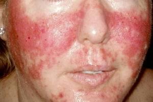 Аллергическая реакция организма на препарат