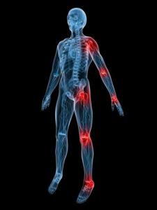 Алкоголь приводит к плохому кровообращению, поэтому могут болеть суставы