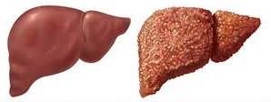Алкогольный гепатит, переходящий в цирроз печени