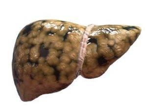 Жировая дистрофия – первая стадия разрушения клеток печени