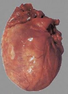 Сердце у алкоголика со временем увеличивается и обозначается термином «алкогольное сердце» или «пивное сердце»