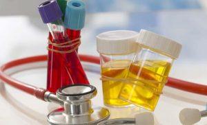 анализ крови и мочи