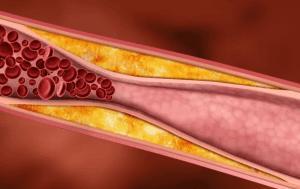 Спиртное воздействует на кровеносную систему человека