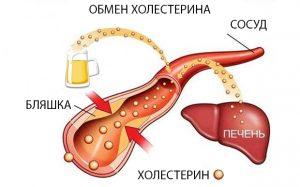 Влияет ли алкоголь на холестерин