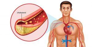 Холестерин представляет собой кристаллическое вещество, избыток которого откладывается на стенках сосудов, образуя конгломераты, затрудняющие ток крови